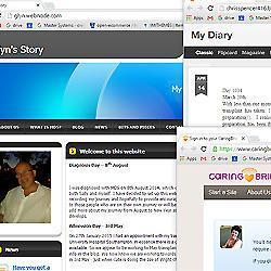 MDS Transplant blogs
