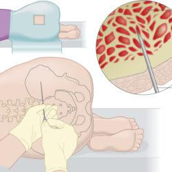 Blood vs Bone marrow:  New technologies can reduce the need for bone marrow biopsies