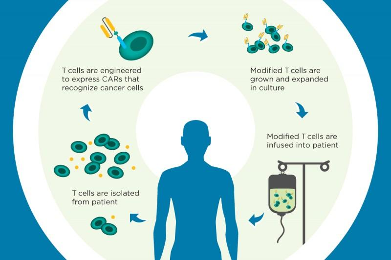 What Is Car T Cell Therapy Learn How This Immunotherapy Works In