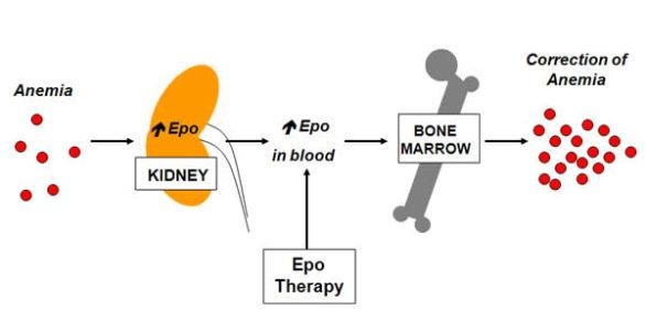 EPO (Erythropoietin) & other Erythropoiesis Stimulating Agents (ESAs) in the Treatment of MDS