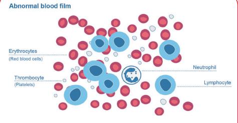 Abnormal blood film